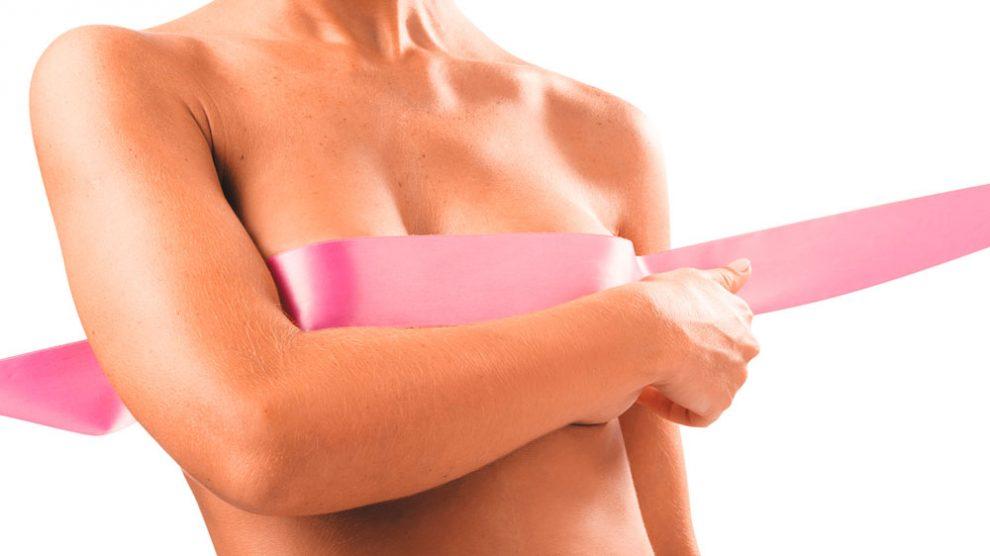Especialistas realizam ação gratuita para mulheres que passaram pelo câncer de mama